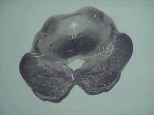Corte de Mesencéfalo - Tronco Encefálico