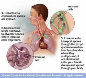 Histoplasmose – Quadro Clínico e Diagnóstico, Micose Sistêmica
