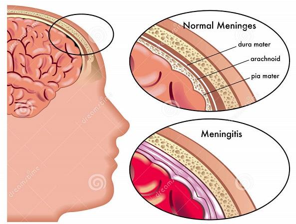 Inflamação das Meninges com edema e infiltrado